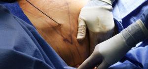 Liposuction photography